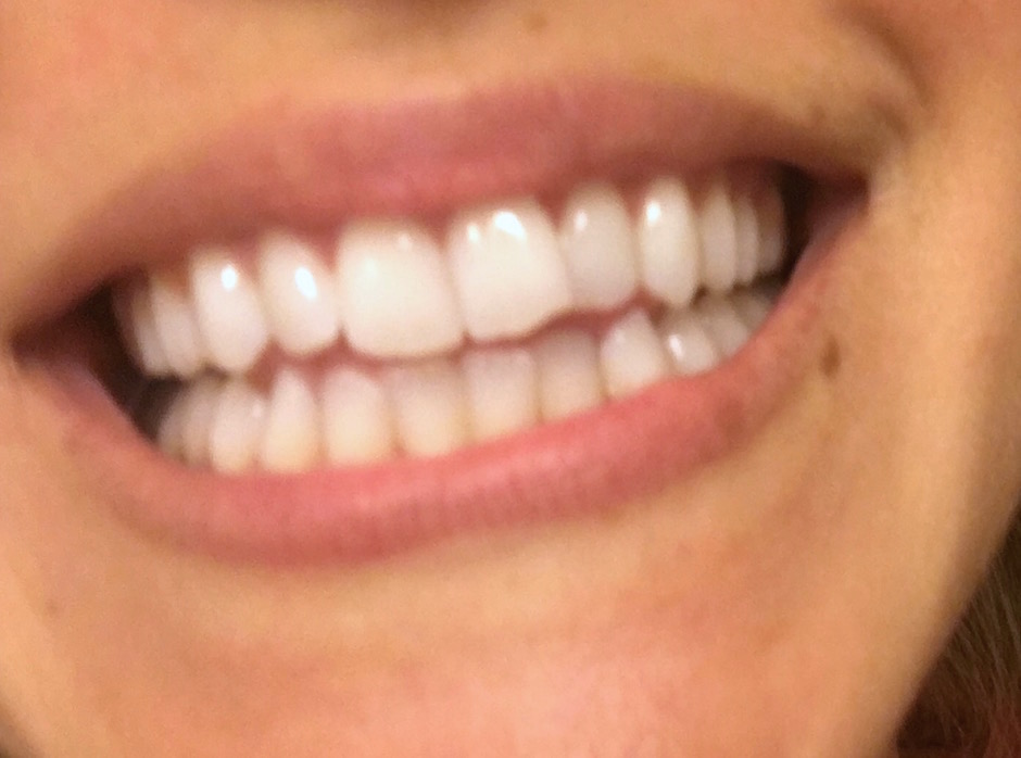 Smile Brilliant Teeth Whitening before