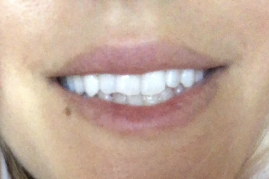 Lumineux Teeth Whitening Kit Blazers And Bubbly By Julie Holland